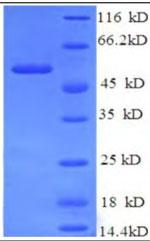 SDS-PAGE CYP19A1.