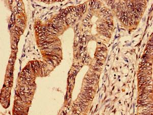 Immunocytochemistry (IHC)