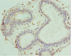 Immunohistochemistry (IHC) PDXK.