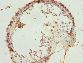 免疫组化(IHC)