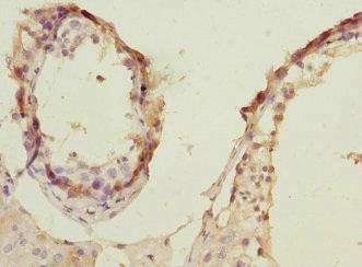 Immunohistochemistry (IHC) PRPS1.