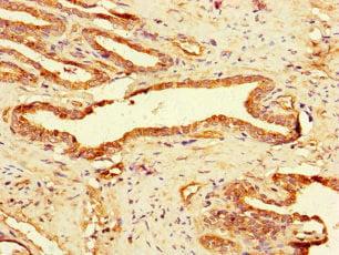 Immunohistochemistry (IHC) GAA.