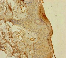 Immunohistochemistry (IHC) S100A14.