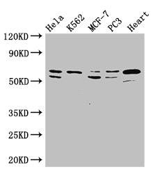 Western Blot (WB) ATP5A1.
