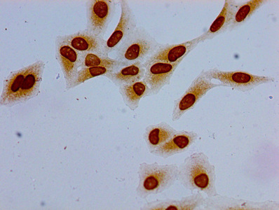 Immunocytochemistry (ICC)