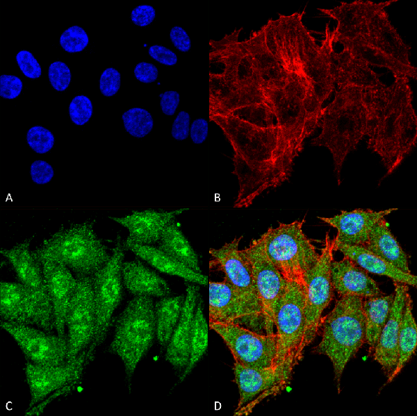Immunocytochemistry/Immunofluorescence (ICC/IF)