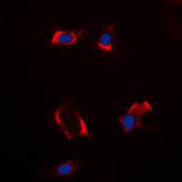 Immunofluorescence/Immunocytochemistry (IF/ICC)