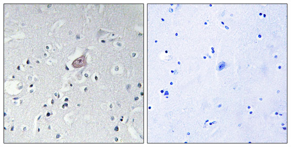 anti-Abl antibody Testing Data image