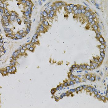 Immunohistochemistry (IHC) EFNA1.