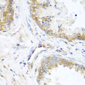Immunohistochemistry (IHC) YBX1.