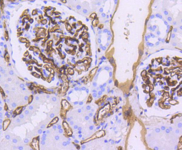 Immunohistochemistry (IHC) CD34.