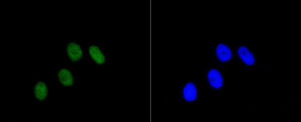 Immunofluorescence (IF) RB1-S807.