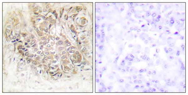 Immunohistochemistry (IHC) TPT1.
