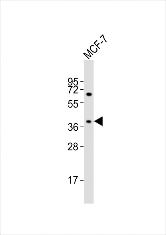 Western Blot (WB) OR11H4.