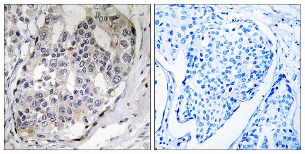 Immunohistochemistry (IHC) PPP1R1B.