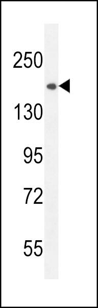 Western Blot (WB) CEP164.