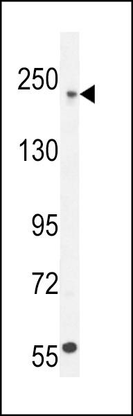Western Blot (WB) COL5A1.