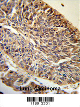 Immunohistochemistry (IHC) PITX1.