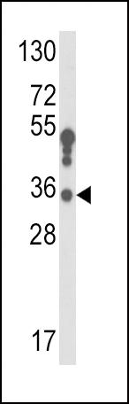 anti-HSD17B3 antibody Western Blot (WB) (WB) image