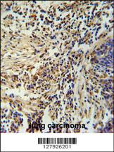 Immunohistochemistry (IHC) ZNF720.