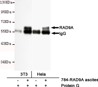 Immunoprecipitation (IP) RAD9A.