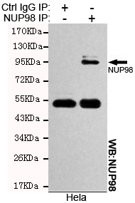 Immunoprecipitation (IP) NUP98.