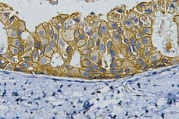Immunohistochemistry (IHC) ErbB-2/HER-2.
