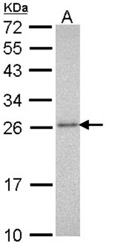 anti-PSMA3 antibody Testing Data image