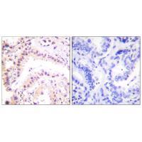 Immunohistochemistry (IHC) CUL2.