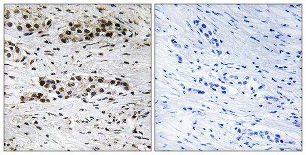 Immunohistochemistry (IHC) ESR1.