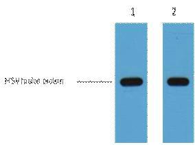 Testing Data HSV-Tag.