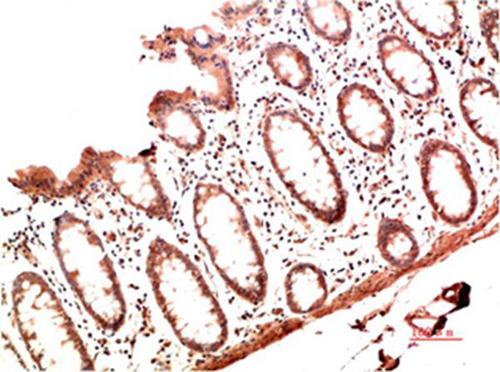 Immunohistochemistry (IHC) Collagen I.