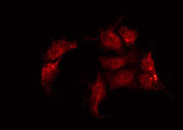 Immunofluorescene (IF)
