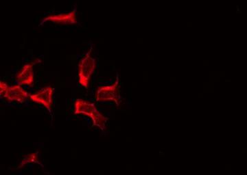 Immunofluorescence (IF)