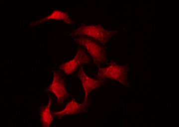 Immunofluorescence (IF)